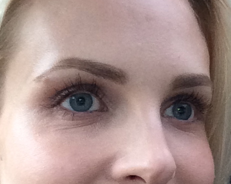 How To Fix Dry Under Eyes Beautynow Blog