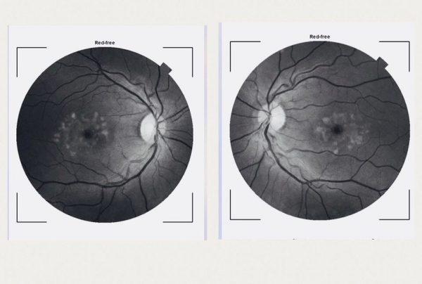 Opticians Camera Work