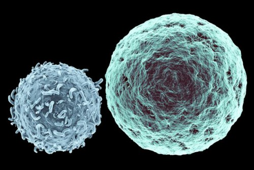 953591_Killer-T-Lymphocyte-approaching-Cancer-Cell