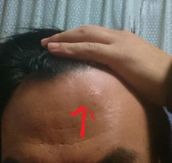 額 腫瘍 アテローム 脂肪