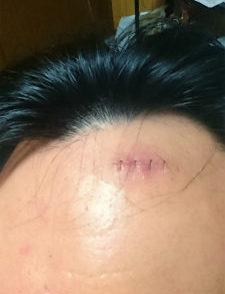 腫瘍 頭 オペ