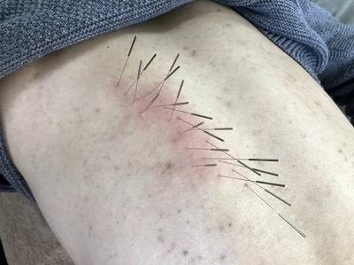 慢性胃炎(胃痛)の鍼治療