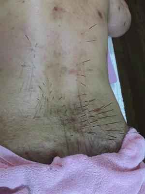 肩こりと鍼灸4