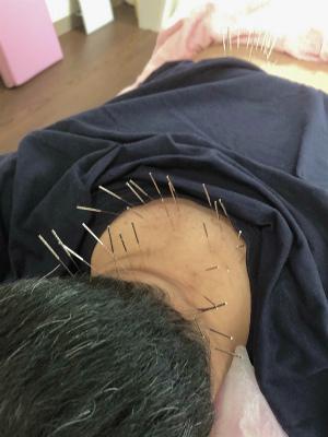 てんかんと鍼灸1