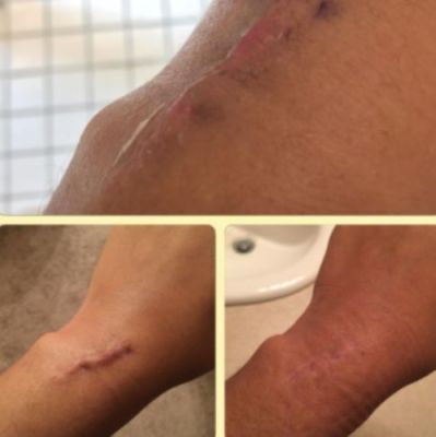 Silicone Scar Removal Patch photo review