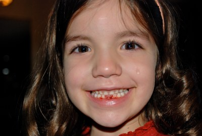 Ruby Bleeding Tooth