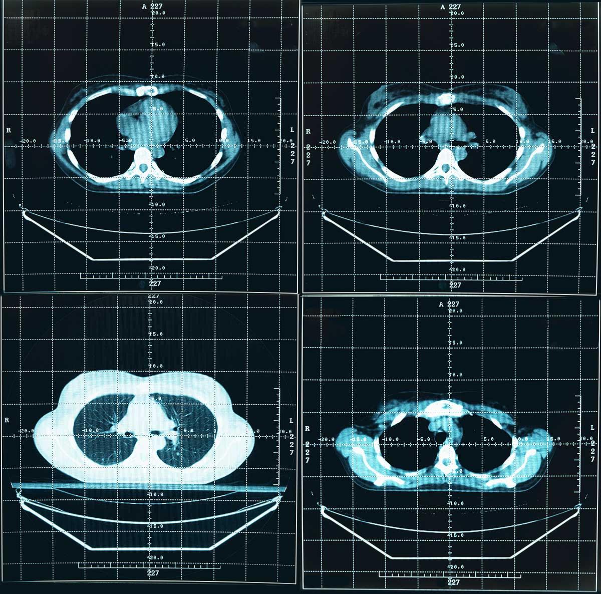 KI findet Lungenkrebs auf Computertomografien - CT Scan eines Brustkorbs, mit dem der Deep Learning Algorithmus trainiert wurde