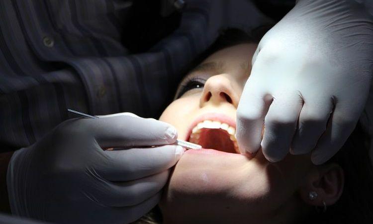 Dantų implantai: ką būtina žinoti?
