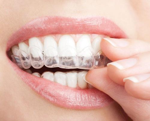 Kada reikia dantų balinimo?