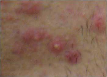 化膿黄色ニキビの画像