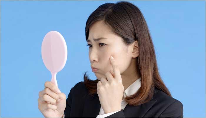化膿ニキビに悩む女性のイメージ画像