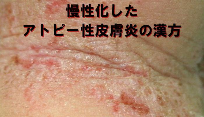 アトピー性皮膚炎で痒い男性の画像