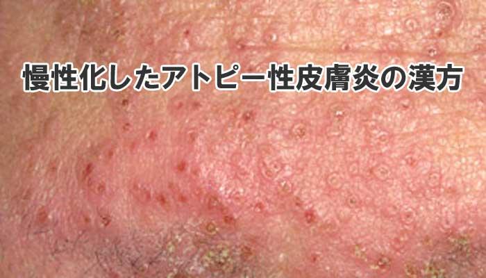 慢性化したアトピー性皮膚炎の画像と慢性化したアトピー性皮膚炎によく効く漢方
