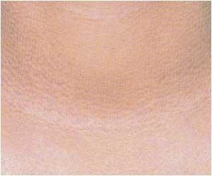 アトピー性皮膚炎で肌が乾燥してかゆい画像