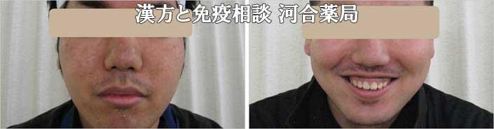 男性ニキビ治療経過写真