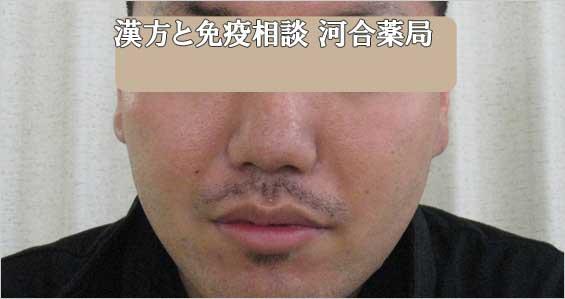 男性ニキビ治癒後写真1