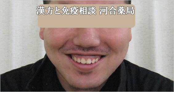 男性ニキビ治癒後写真2