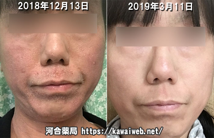 アトピー性皮膚炎の改善写真 オゾナ スキンケア