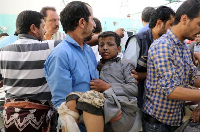 Yemen-School-Bus-Air-Strike-5646445