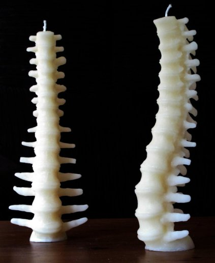 epine dorsale