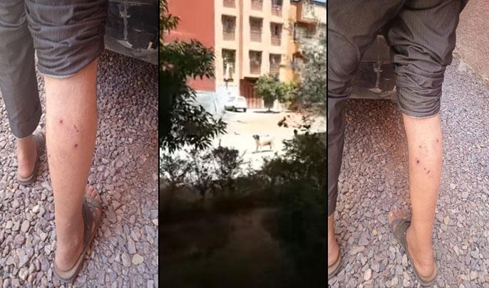 كلبة ضالة تهاجم مواطنين وتروّع سكان أحد أحياء مراكش + ڨيديو