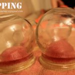 Traditional Chinese Medicine: Cupping
