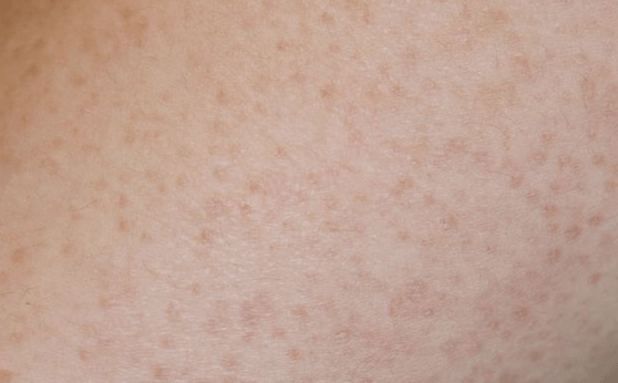 Children with keratosis pilaris will have small, scaly, red or flesh colored bumps on both cheeks, upper arms, and/or thighs.