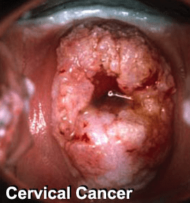 Abortion HPV