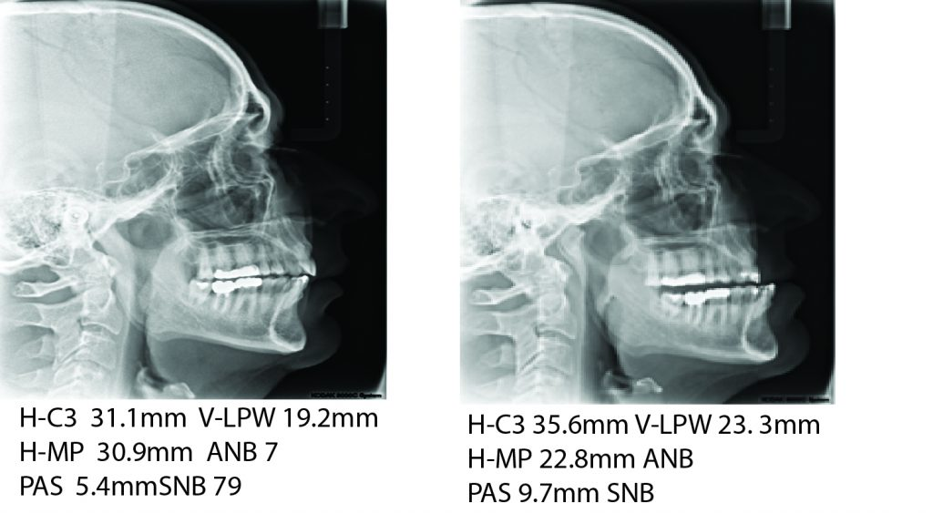 Cephalometric radiographs of patient without and with the intra oral device in position.