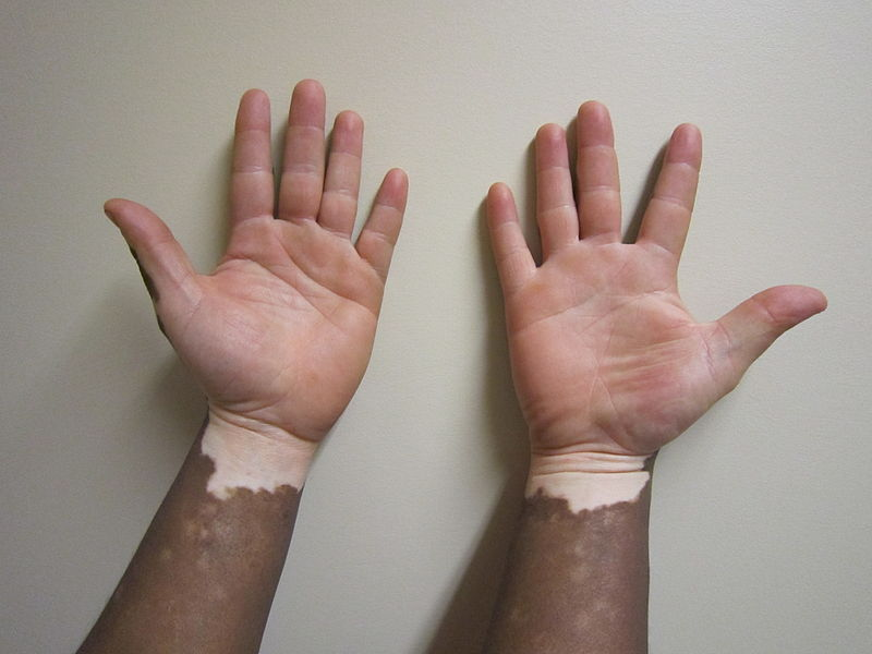 Vitiligo; Is this the whitening the torah talks about?
