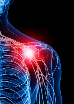 radiating-nerve-pain-arm