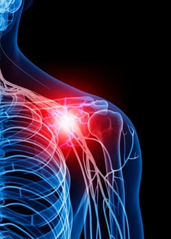 Sciatic Nerve Pain: How to Deal with the Effects of Sciatica in ...