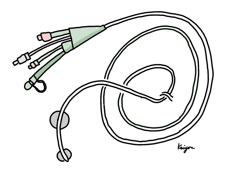 イレウス管