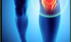Terapi nyeri sendi lutut yang bisa Anda lakukan dirumah!