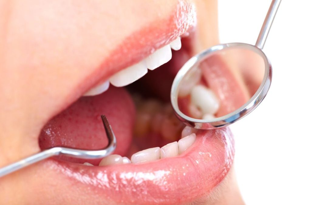 The Truth About Fillings