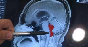 أمريكا : أكتشاف دوددة شريطية في مخ رجل بعد معاناته 10 سنوات