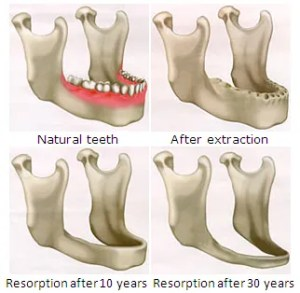 A chart outlining the progression of bone loss after tooth extractions