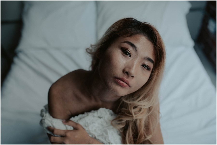 seattle, seattle-boudoir, seattle-boudoir-photographer, Impossible-boudoir-project, boudoir-photos, pioneer-square-boudoir, boudoir-photography, boudoir-inspiration, female-empowerment, Eczema, Eczema-boudoir, Empowered, boudoir-project,