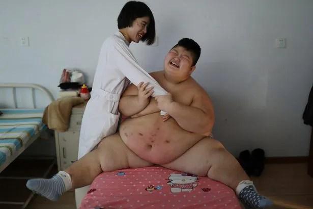 Dùng lửa đốt mỡ bụng, phương pháp giảm cân cho nhiều trẻ em béo phì tại Trung Quốc - Ảnh 5.