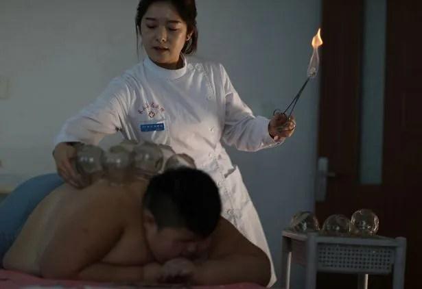 Dùng lửa đốt mỡ bụng, phương pháp giảm cân cho nhiều trẻ em béo phì tại Trung Quốc - Ảnh 3.