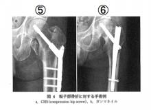 大腿骨頚部骨折の術式