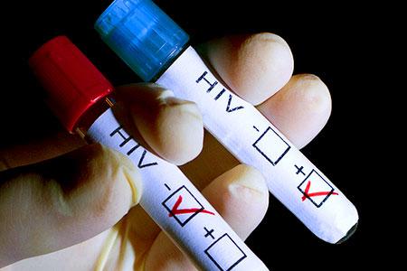 日本は増加傾向のHIVに念願の抗HIV化合物が見つかった?