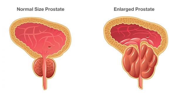 bph - 尿が出にくくなって来た…前立腺肥大症は男の悩み!痛みや治療法は?