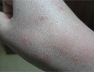 Cephalonomia gallicola