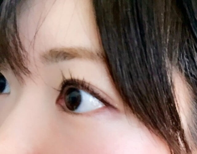 目の病気である光視症の原因や見え方とは?