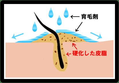 皮脂や汚れが詰まった毛穴