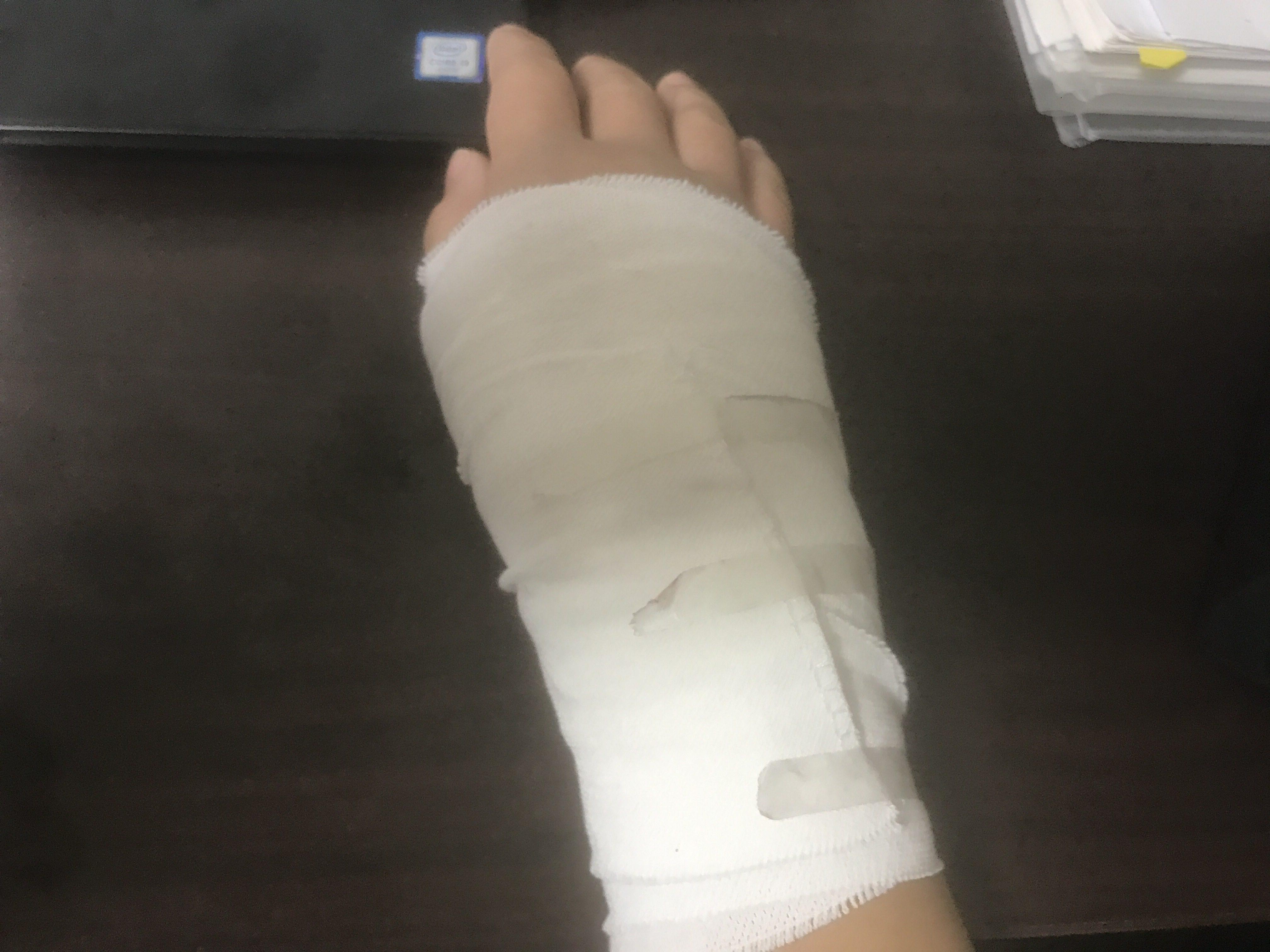 右手の捻挫。いつも大事なものは失ってから気づく。