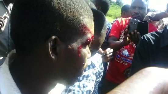 Bungoma Man Falls off from Flying Chopper but escaped death