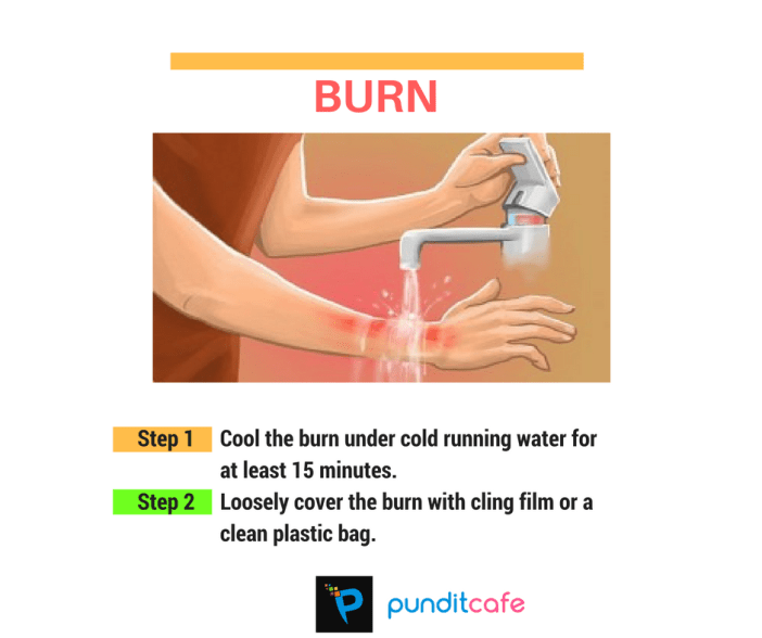 First aid for burn