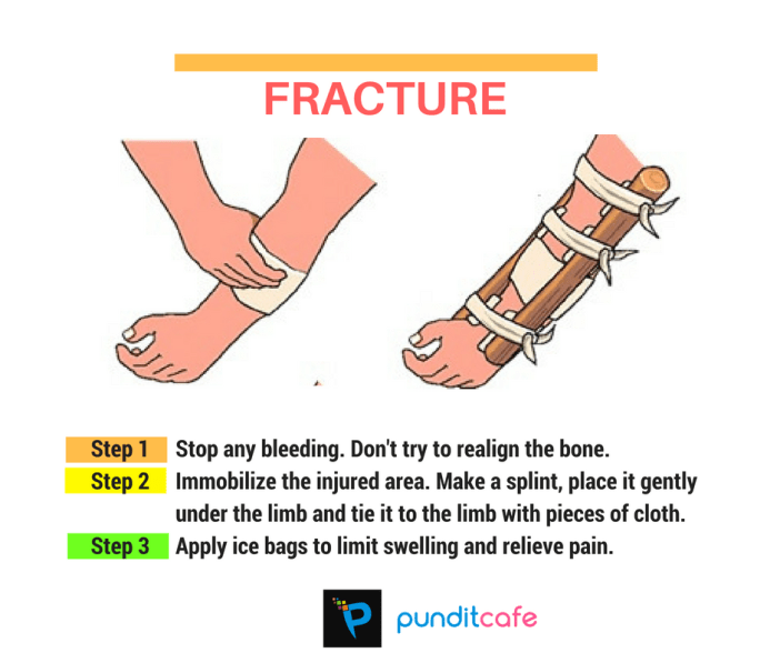 First aid for fracture